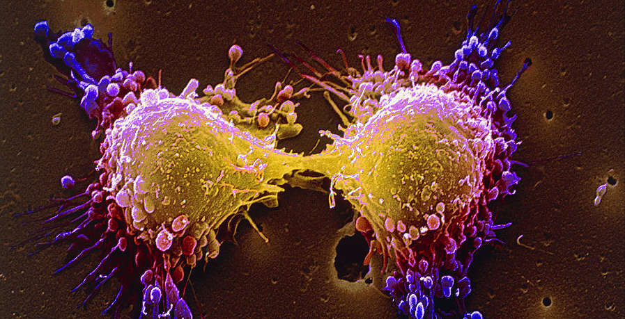 Cancer_Cells_1