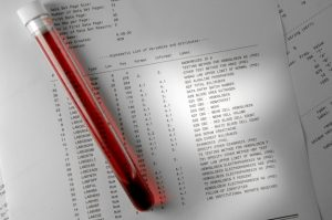 down-syndrome-lab-blood-test-results-blog